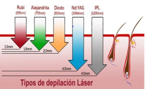 laser-eliminación de tatuajes- eliminación de vello- depilación