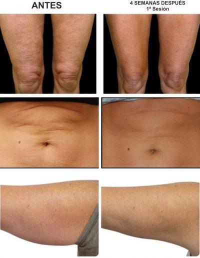 carboxyterapia.uñasgel-pestañas-extensiones-lifting-microblading-pestañasenvalencia