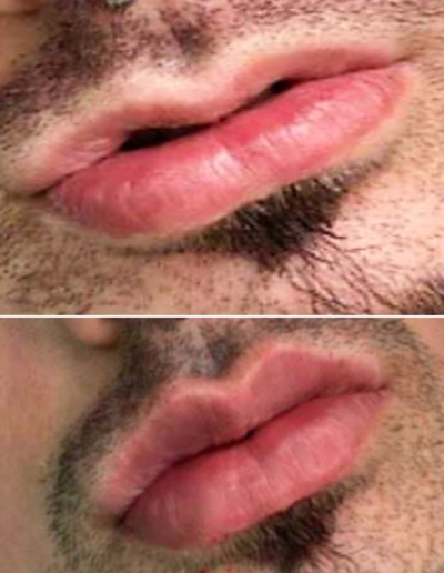 extensionesdepestañas-depilacion-uñas-manicura-micropigmentacionhilo-pedicura-belleza